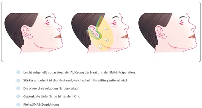 Facelifting SMAS