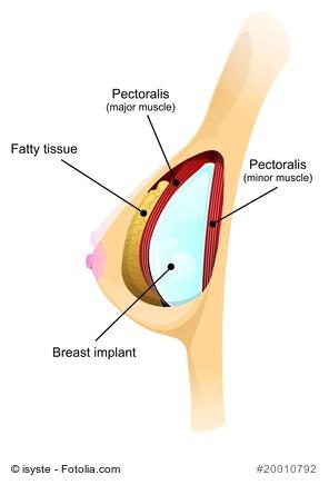 Ein kurzer Überblick über die verschiedenen Arten von Brustimplantaten